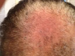 Hair Loss Vitamin Deficiency Hair Care Nouritress
