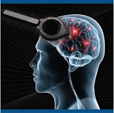 magnetic stim u2014 american brain stimulation clinic u2022 u2022 u2022 truemind u2022 u2022 u2022
