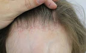 female receding receding hairline in women causes treatment young black women