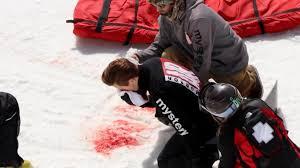 Shaun White Meme - us snowboard star returns after horrific crash cnn video