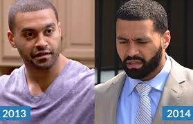 hairline restoration for black men can bigen conceal hair loss in black men