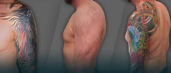 evolve tattoo removal san diego u0027s laser professionals