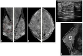 mri guided biopsy breast zjaocr article breast imaging mri breast clinical indications a