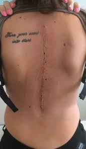 twisted spine scoliosis tattoos hudson valley scoliosis
