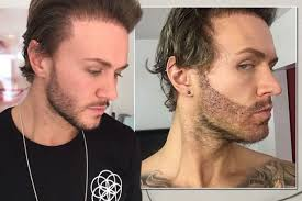 sting hair transplant geordie shore s kyle christie gets a 12 hour beard transplant to