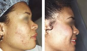 light treatment for skin isolaz laser acne treatment phoenix mohs surgery surgeon