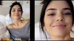 reason behind thanksgiving kendall jenner shows lip fillers at thanksgiving dinner after