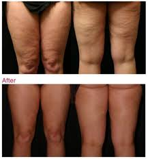 red light therapy cellulite cellulite removal cellulite removal treatment london clinica fiore