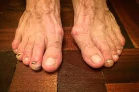 Ugly Feet Meme - these are the ugliest runners feet you ve ever seen runner s world