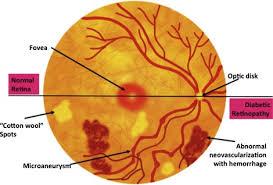 Diabetic Blindness Diabetic Retinopathy Breaking The Barrier Sciencedirect