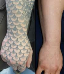 top tattoo art laser tattoo removal after one treatment