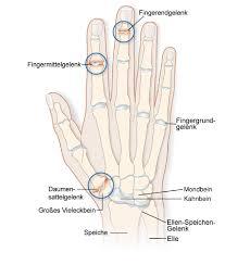knoten handinnenfläche schwellungen und knoten an den händen arthrose der und