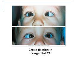 pediatric ophthalmology ppt
