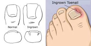 treatments for ingrown toenails step to health