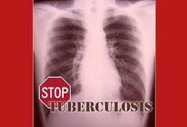 Obat Tbc unya cara menyembuhkan tbc paru tuberkulosis secara alami tanpa