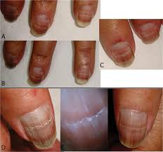 2014 2 24 beau our dermatology online journal
