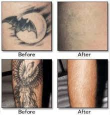 laser tattoo removal long island nyc new york