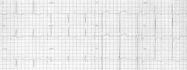 strain pattern ecg meaning t wave ecg basics litfl ecg library