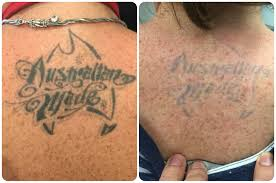 tattoo removal shoulder laser tattoo removal perth dr ehsan jadoon