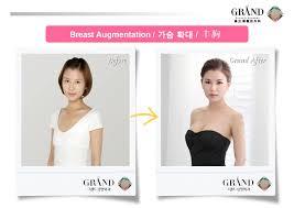 plastic surgery korea before u0026 after tear drop breast augmentation