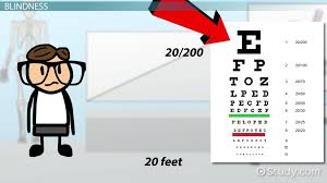 Legally Blind Definition Blindness U0026 Vision Impairment Medical Vocabulary Video U0026 Lesson