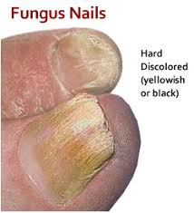 footcare direct ingrown toenails and fungus nails