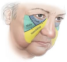 Surface Anatomy Eye Facelift Anatomy Smas Retaining Ligaments And Spaces