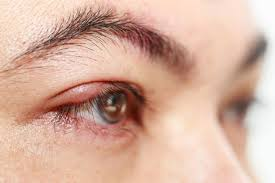 stye causes prevention and treatment