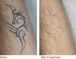 deka u003e applications u003e medicine u0026 aesthetics u003e tattoo removal