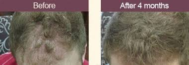 how thick is 1000 hair graft hair restoration san jose ca laser hair regrowth bay area