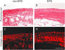 D Collagen collagen volume fraction collagen density in submesothelial