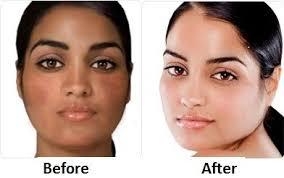 Gluta Skin best skin lightening pills for whitening black glutathione