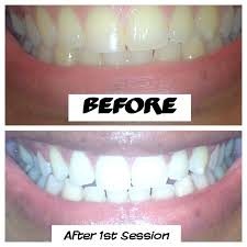smile bright review get white teeth at home youtube
