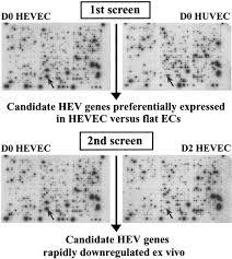 plasticity of endothelial cells rapid dedifferentiation of