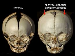 Floor Of The Cranium Posterior Cranial Vault Distraction Osteogenesis Pvdo U2014 Dallas
