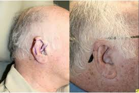 cancer of the ear cartilage atlanta mohs surgery skin cancer reconstructive plastic surgeon