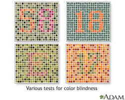 Color Blind Plate Test Color Blindness Tests Medlineplus Medical Encyclopedia Image