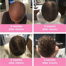 growing back afro american hair after chemo 5 months after chemo hair progression crunchy girl gets cancer
