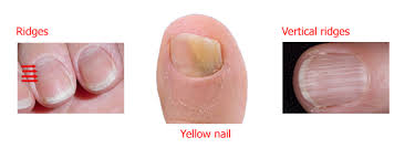 how your nails reflect your health
