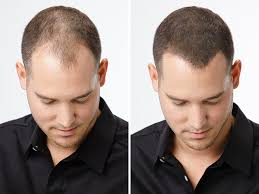 Antidepressants And Hair Loss Amazon Com Espiritu De Canela Cinnamon Spirit Oil Men Women Hair