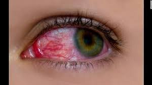 Cure For Night Blindness Night Blindness Vision Impairment Treatment