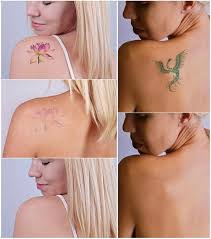 13 tattoo removal methods and how to remove tattoo styles at life