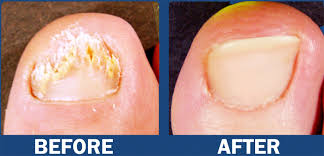 laser nail toenail fungus treatment in nyc institute beauté