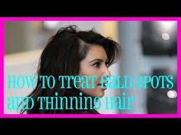 women hair cut to cover bald spot on top of head how to treat bald spots and thinning hair youtube