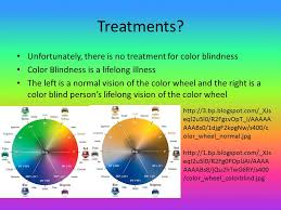 Most Common Colour Blindness By Brianna Kearney And Juliet Ruhe Ppt Online Download