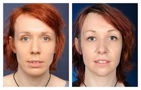 feminization hair amelie before and after facial feminization surgery 2pass clinic