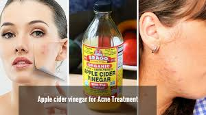 how to use vinegar to get rid of hair dye how to get rid of acne fast use apple cider vinegar for acne
