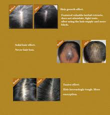 Essential Oils For Hair Loss Essential Oils Picture More Detailed Picture About Hair Tonic