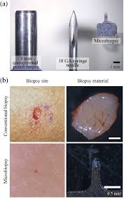 microbiopsy engineered for minimally invasive and suture free sub