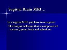 Sagittal Brain Mri Anatomy Imaging Anatomy Of The Cns Ppt Video Online Download